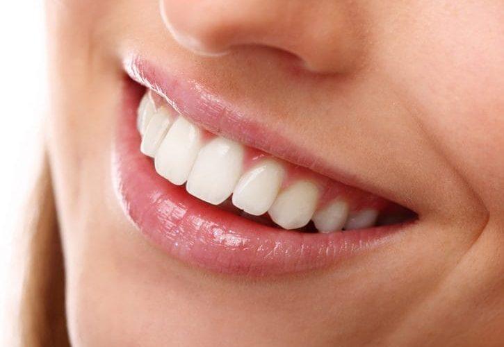 Faccette dentali Albania