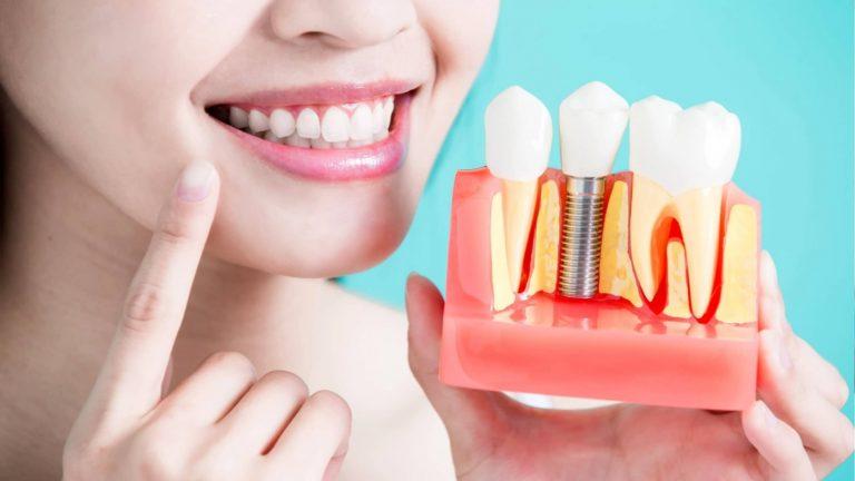 Implanti Dentali in Albania
